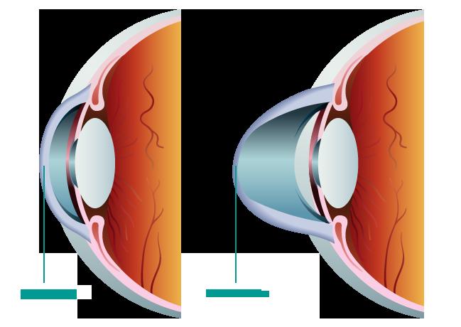 Keratoconus – Gemini Augenlaser International