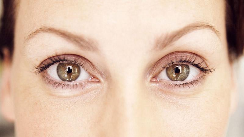 Trockenes Auge Symptome